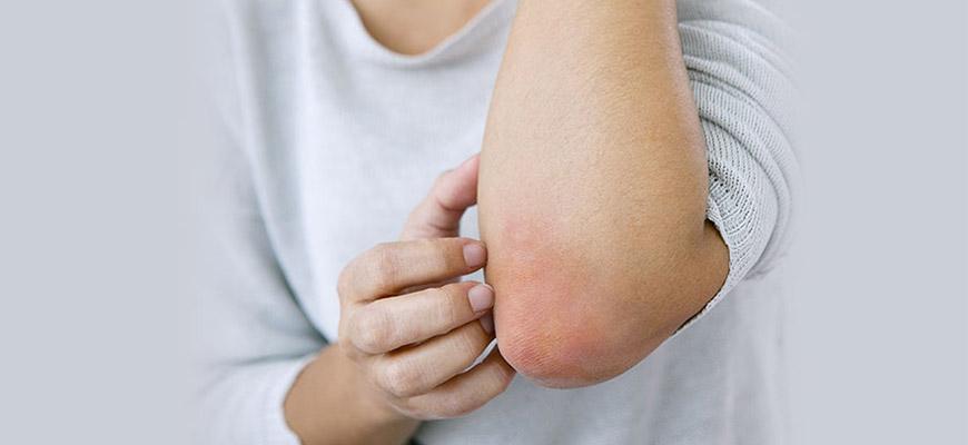 psoriasis schuppenflechte muenchen heilpraktiker 870 - Home